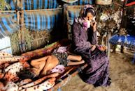 The UN calls Yemen the world's worst humanitarian crisis, leaving civilians desperate and dependant on aid to stave off starvation