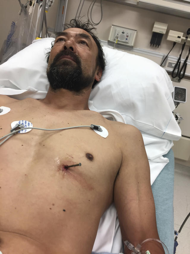 He shot himself in the chest with a nail gun