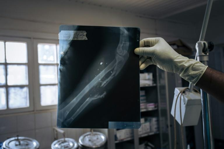 A nurse at Beni General Hospital shows an X-ray of a patient shot during an attack on a mining site