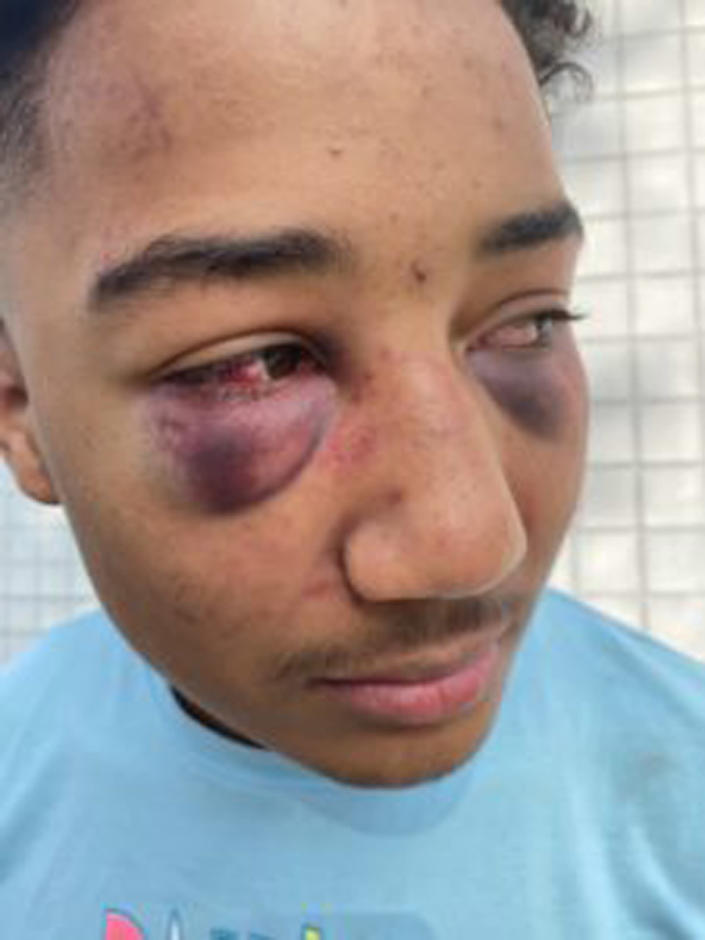 Images released by Carter's attorney show the extent of his injuries. (Courtesy Law Offices of John Burris)
