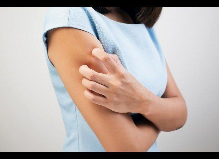 """Itchy and dry skin is another common symptom of hypothyroidism. This has to do with skin turnover, Dr. Hall says. """"It slows down which means there are older cells still on the skin."""" You may <a href=""""http://www.theactivetimes.com/content/signs-you-need-more-iron-your-diet"""" rel=""""nofollow noopener"""" target=""""_blank"""" data-ylk=""""slk:find your nails very breakable"""" class=""""link rapid-noclick-resp"""">find your nails very breakable</a> all of a sudden. Insufficient thyroid hormone <a href=""""http://www.theactivetimes.com/fitness/n/10-widespread-myths-about-metabolism"""" rel=""""nofollow noopener"""" target=""""_blank"""" data-ylk=""""slk:slows down metabolism"""" class=""""link rapid-noclick-resp"""">slows down metabolism</a>, which reduces sweating. The <a href=""""http://www.thyroid.ca/e9b.php"""" rel=""""nofollow noopener"""" target=""""_blank"""" data-ylk=""""slk:dryness can be extreme"""" class=""""link rapid-noclick-resp"""">dryness can be extreme</a>, this may cause no sweating and the palms and soles to get thick and dry. <em>Photo Credit: Shutterstock</em>"""