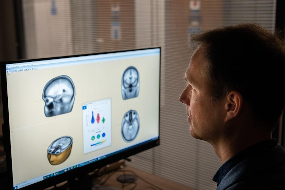 Lead researcher Dr George Stothart examines the results of brain scans (Nic Delves Broughton/University of Bath/PA)