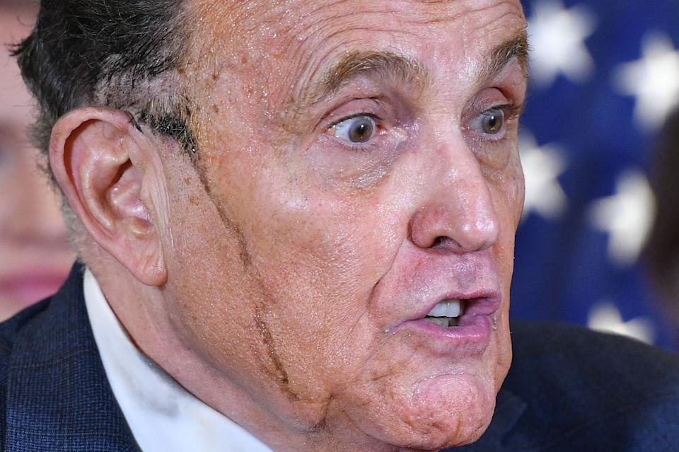 Trump's personal lawyer Rudy Giuliani perspires as he speaks during a press conference at the Republican National Committee headquarters in Washington, DC, on November 19, 2020. (Photo by MANDEL NGAN / AFP) (Photo by MANDEL NGAN/AFP via Getty Images)