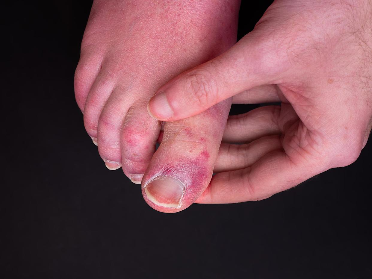 Scientists have uncovered what they believe causes COVID toe. (Getty Images)