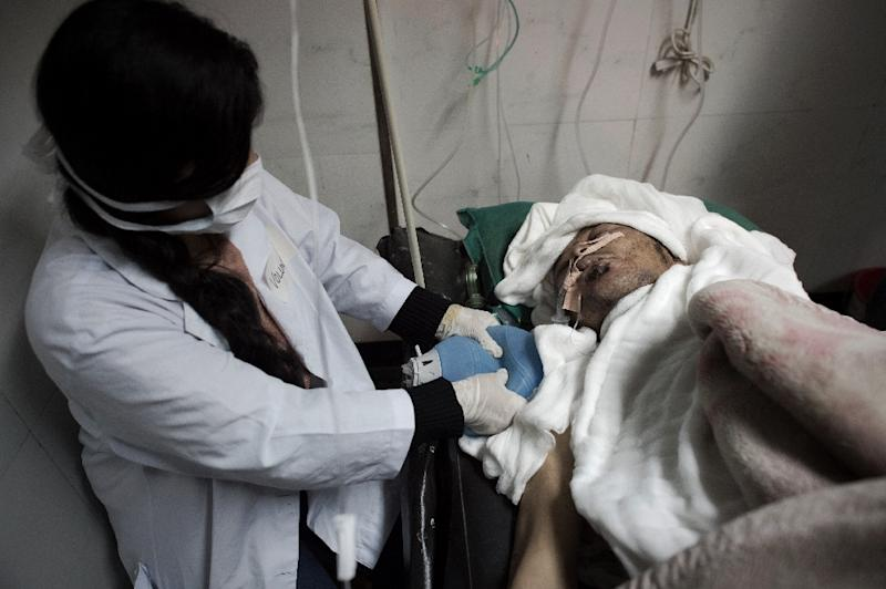 A volunteer nurse manually squeezes an air pump while maintaining a steady flow of oxygen for a survivor of the earthquake at the National Trauma Centre hospital in the capital Kathmandu on April 30, 2015 (AFP Photo/Nicolas Asfouri)