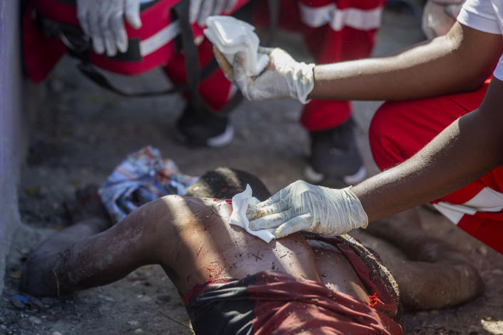 A wounded inmate is tended to after an attempted escape from the Croix-des-Bouquets Civil Prison in Port-au-Prince, Haiti, Thursday, Feb. 25, 2021. At least seven people were killed and one injured on Thursday after eyewitnesses told The Associated Press that several inmates tried to escape from a prison in Haiti's capital. (AP Photo/Dieu Nalio Chery).