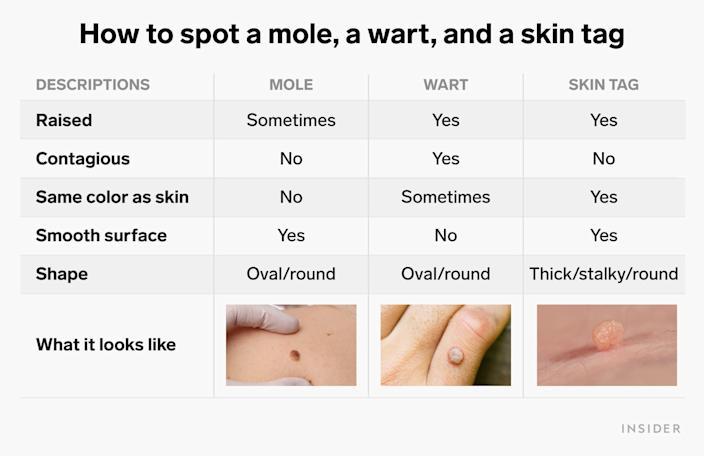 skin tag table