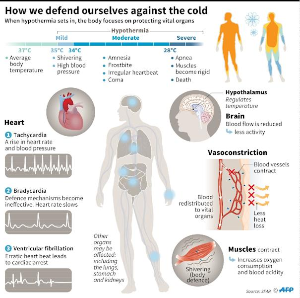 Illustration of the effects of cold on the human body (AFP Photo/S. Ramis/E. Tônv)