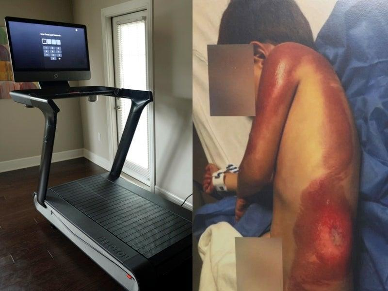 Parents sue Peloton after three-year-old sustains third-degree burns from treadmill (Getty / Merson Law / Sarah and Ygal Saadoun)