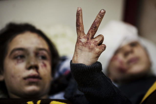 <p>Hana, 12, flashes the victory sign next to her sister Eva, 13, as they recover from severe injuries after the Syrian Army shelled their house in Idlib, in northern Syria, on March 10, 2012. Their father and two siblings were killed after their home was shelled. (Photo: Rodrigo Abd/AP) </p>