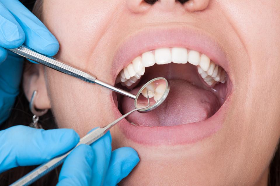 Closeup of dentist tools and mouth open with beautiful teeth