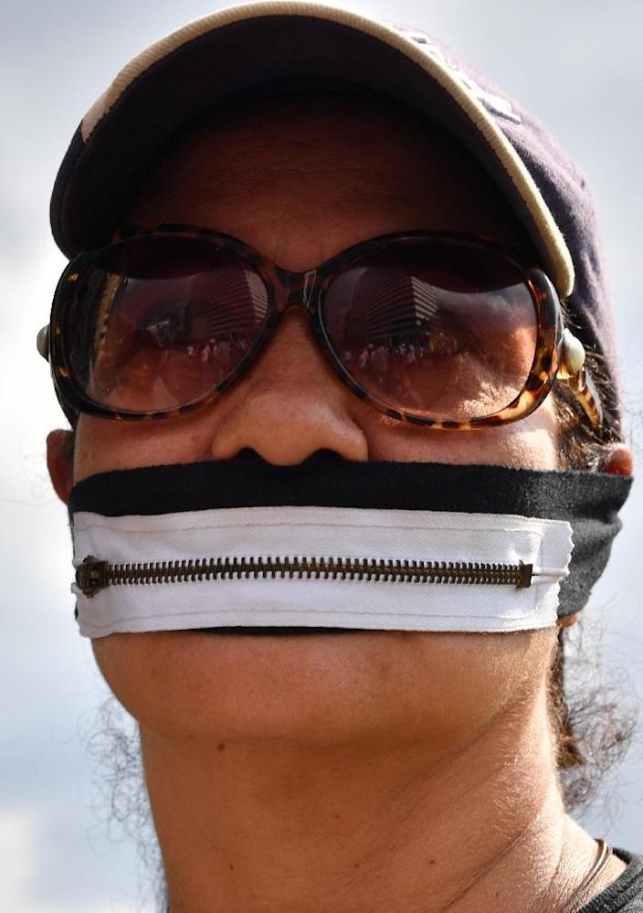 A demonstrator wears a mouth-covering zipper during a protest in Caracas (AFP Photo/Yuri CORTEZ)