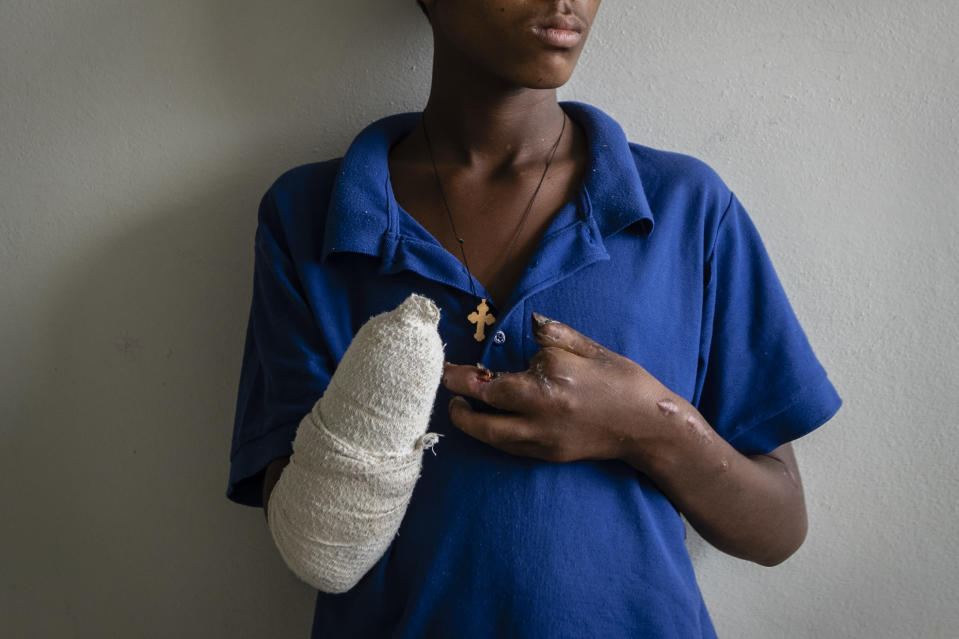 """Haftom Gebretsadik, a 17-year-old from Freweini near Hawzen who had his right hand amputated and lost fingers on his left after an artillery round struck his home in March, sits on his bed at the Ayder Referral Hospital in Mekele, in the Tigray region of northern Ethiopia, on Thursday, May 6, 2021. """"I am very worried,"""" he says. """"How can I work?"""" (AP Photo/Ben Curtis)"""