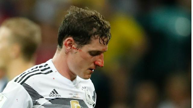 "Joachim Low is willing to ""wait and see"" if the midfielder will be fit for the decisive group stage clash after damaging his nose against Sweden"