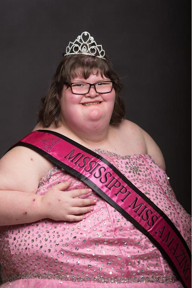 Hankins at the Miss Amazing beauty pageant. (Photo: SWNS)