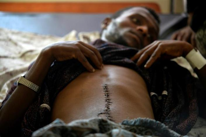 Kidane Tolosa, 23, was assaulted by a gang of fellow Oromos, maybe because he did not take part in the violence (AFP Photo/-)
