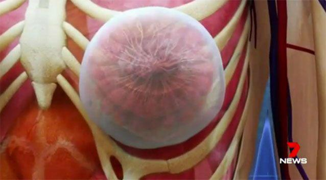 Affecting up to 1 in 1000 women who have had implants, the disease is caused by infection in tissue around the implant. Picture: 7 News