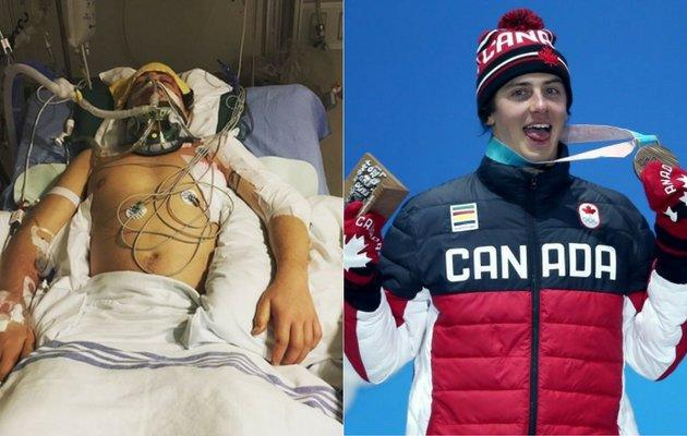 Mark McMorris nearly died after suffering a snowboarding injury near Whistler, B.C. Earlier this month he won an Olympic medal.