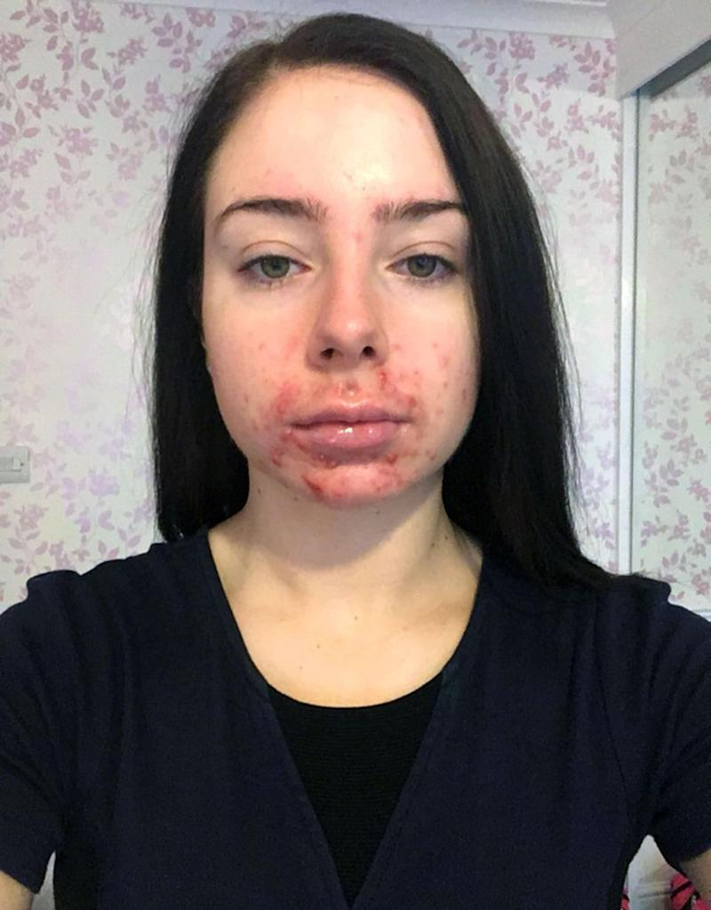 Mollie Cowin's acne was so bad she says her boyfriend was