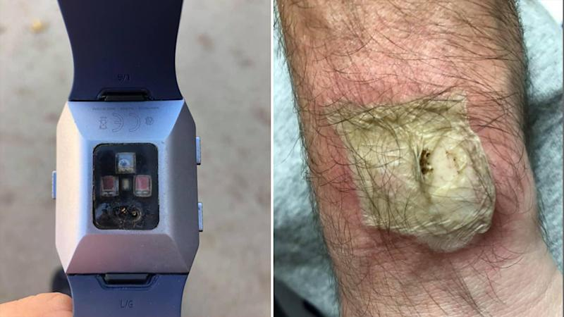 The damaged Fitbit (left) explodes on a mans wrist leaving a third-degree burn (right).