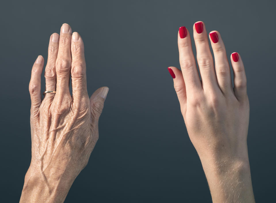 Forget reducing wrinkles people are getting surgery to anti-age their hands [Photo: Getty]