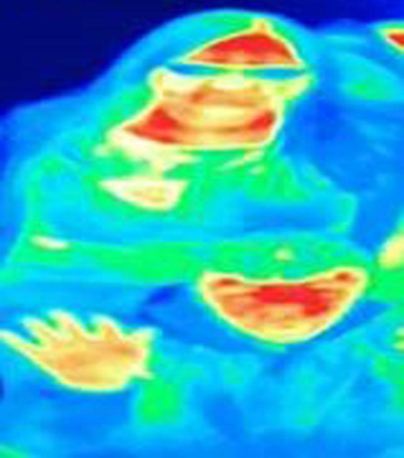 Thermal image of Bal Gill that helped her detect breast cancer