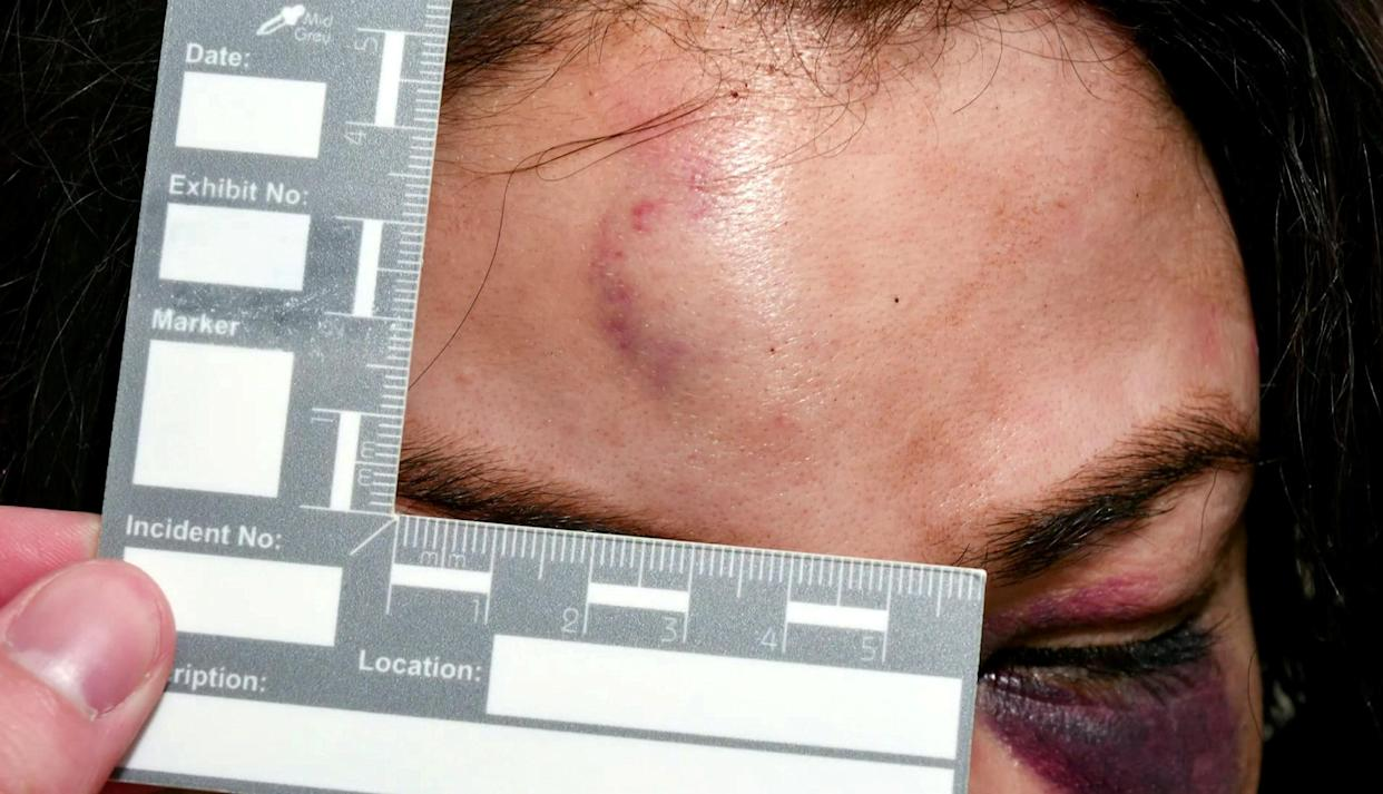 A huge lump left on the victim's head. (SWNS)