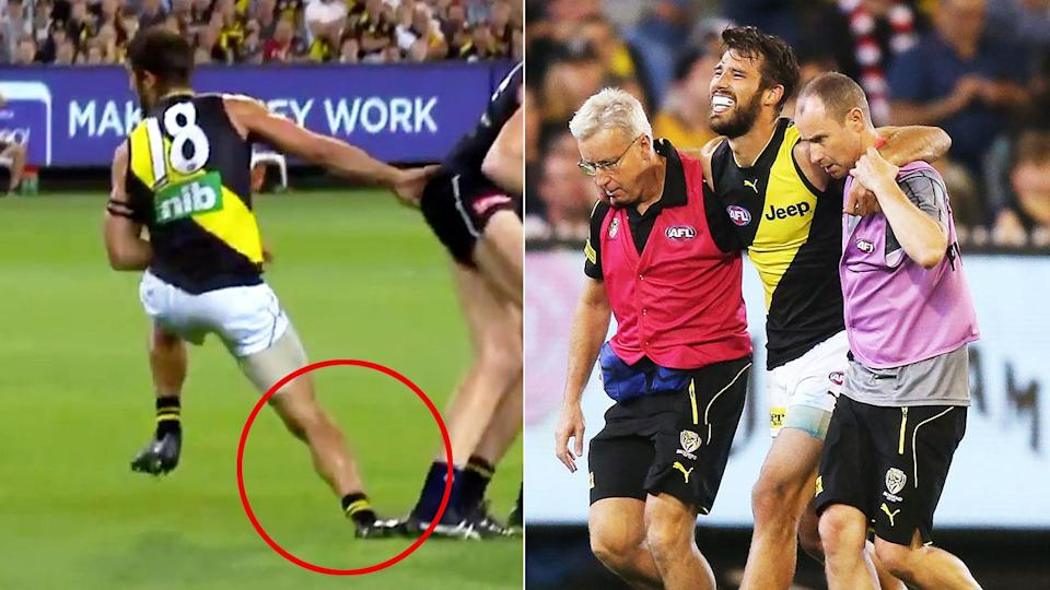 The nasty injury saw Rance come off in the third quarter. Pic: Channel 7/Getty