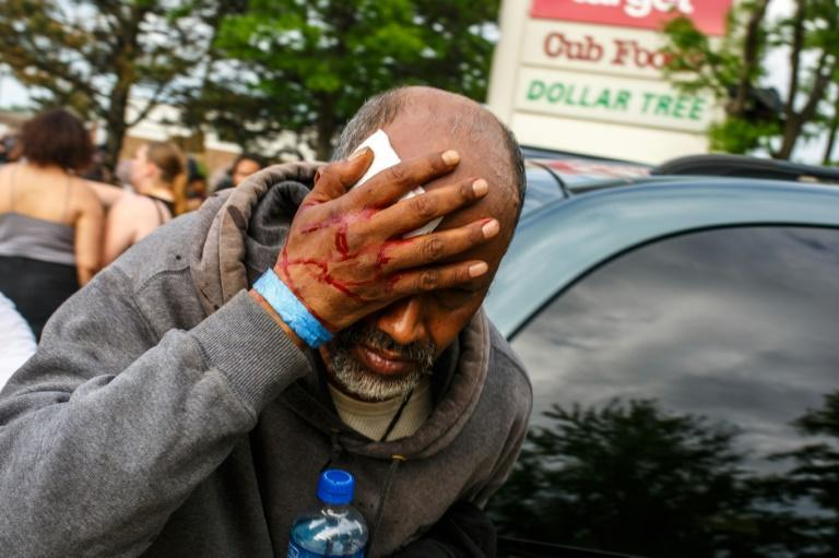 A Somali-American man injured when protesters clashed with police during demonstrations against the death of George Floyd in Minneapolis on May 27, 2020 -- African refugees have joined the protests against racism (AFP Photo/Kerem Yucel)