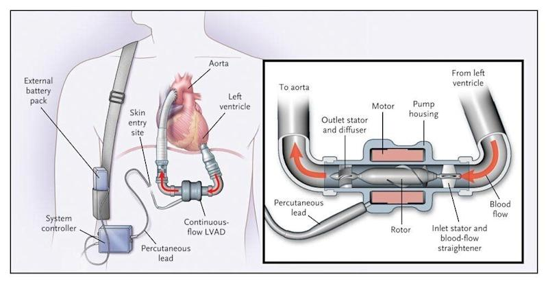 """This diagram shows a left-ventricular assist device similar to those the Roman brothers use. (Photo: <a href=""""https://stanfordhealthcare.org/medical-treatments/l/lvad.html"""" target=""""_blank"""">Stanford Health Care</a>)"""