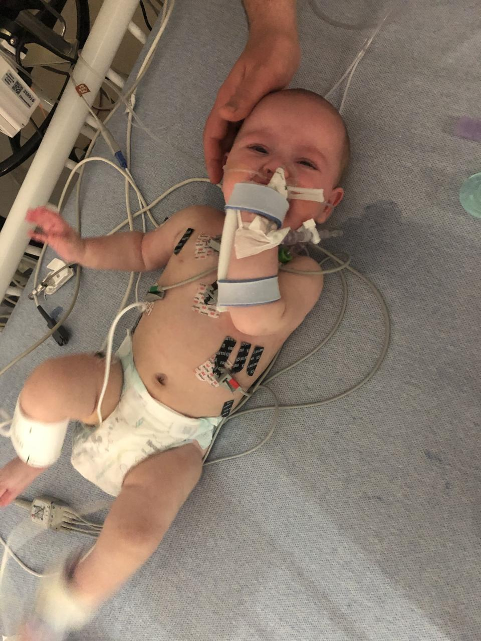 Madelyn spent nine days in hospital receiving intensive treatment. (Supplied: Cleveland Clinic)