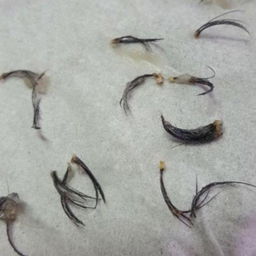The eyelashes were removed in clumps. Photo: Facebook