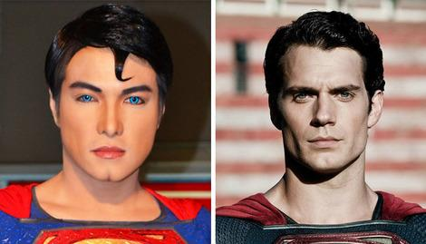 Superman fan has 16 years of surgery to look like the Man of Steel
