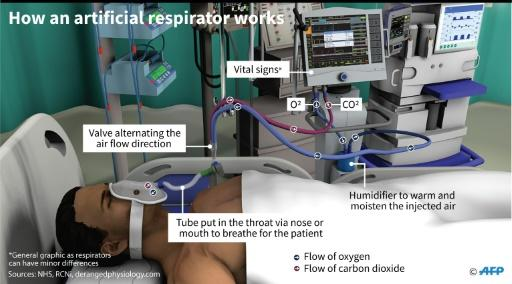 Graphic showing how an artificial respirator works