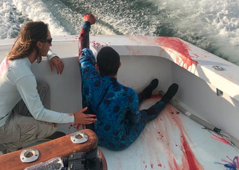 A badly bleeding diver is rescued and transported after a suspected shark attack off the coast of Miami, Florida.