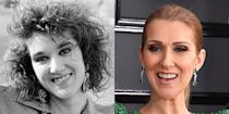 """<p>""""Celine had crowded and discolored teeth. Her smile appears to have been improved with the use of porcelain veneers to create a straighter, whiter, and wider smile that enhances her facial features.""""</p>"""