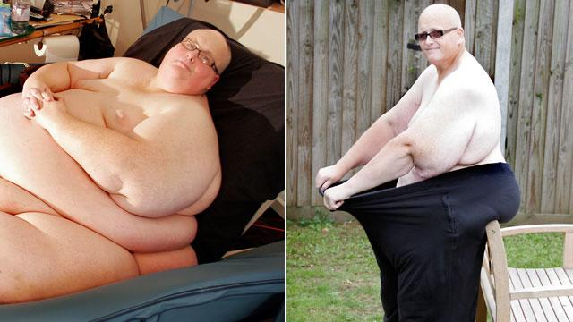 World's Fattest Man Wants Skin Removal Surgery