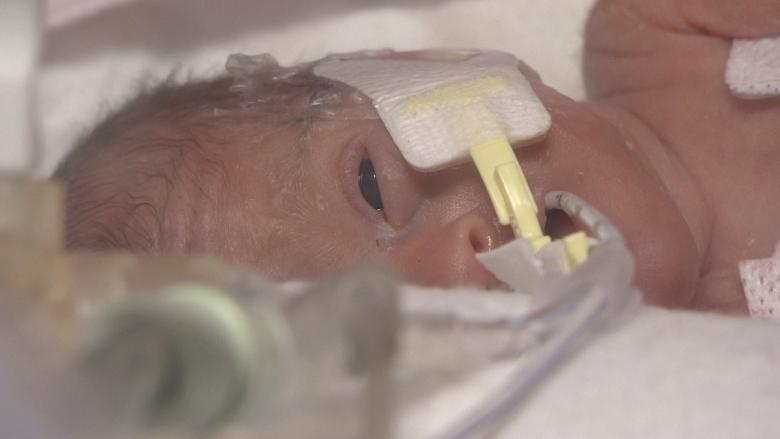 Parents of P.E.I. micro preemie Paizlee Rose say they gain strength, support through Facebook