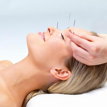Beautiful-young-woman-with-eyes-closed-receiving-acupuncture-therapy_web
