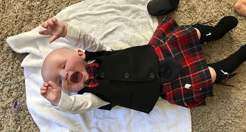 Baby Sasha wearing a kilt as mum gives him up because he was born with no eyes.
