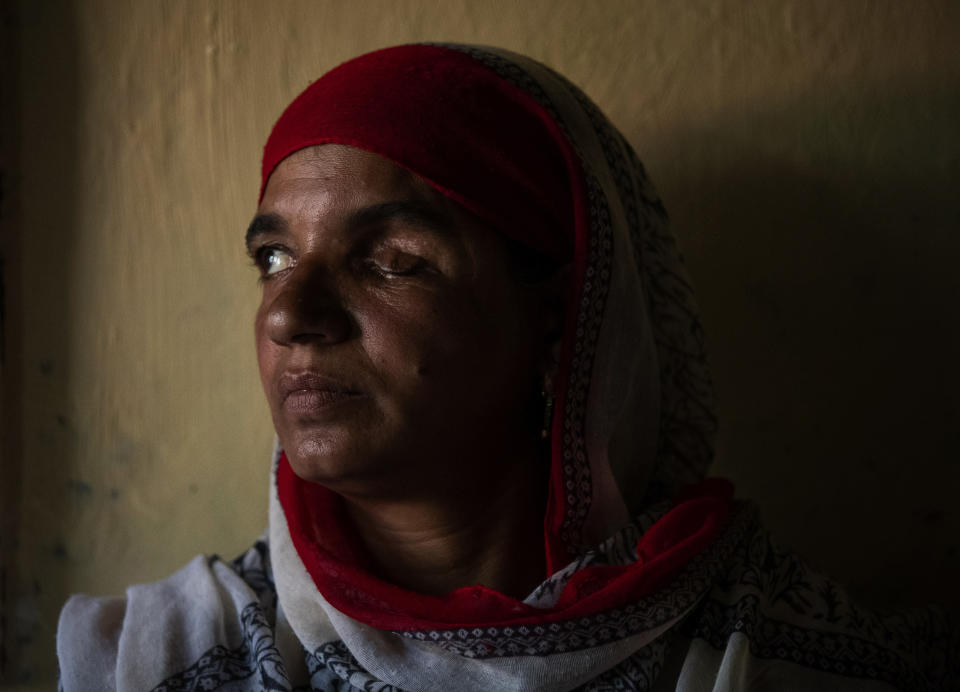 Saleema Bano, 58, a Kashmiri woman who survived an attack by a wild bear, poses for a photograph inside her house at Ladhoo village, south of Srinagar, Indian controlled Kashmir, Monday, Aug . 24, 2020. Saleema said the bear attacked her when she was working in a field with her daughter, resulting in the loss of her left eye. According to official data, at least 67 people have been killed and 940 others injured in the past five years in attacks by wild animals in the famed Kashmir Valley, a vast collection of alpine forests, connected wetlands and waterways known as much for its idyllic vistas as for its decades-long armed conflict between Indian troops and rebels. (AP Photo/Mukhtar Khan)