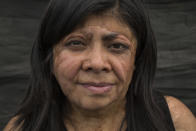 Elisa Xolalpa poses for a portrait during an interview recounting how she survived an acid attack while tied to a post by her ex-partner, damaging her face, chest, back, arms, hands, and making her lose her right finger, as she works at her greenhouse where grows plants to sell at a market in Mexico City, Saturday, June 12, 2021. The attack was 20 years ago when she was age 18, but he was arrested for the first time this year, facing a charge of domestic violence. (AP Photo/Ginnette Riquelme)