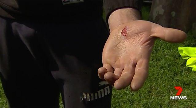 Phill copped a wound. Source: 7 News