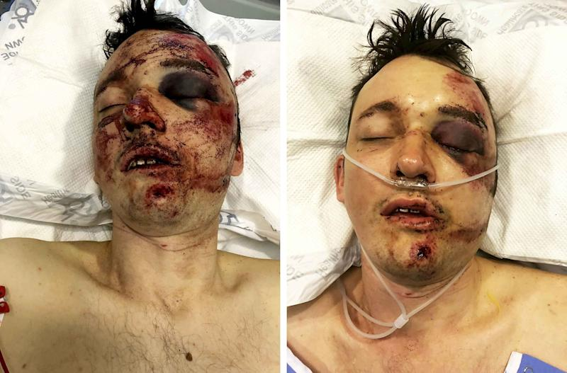 Dom Allan was left with severe injuries (Picture: SWNS)