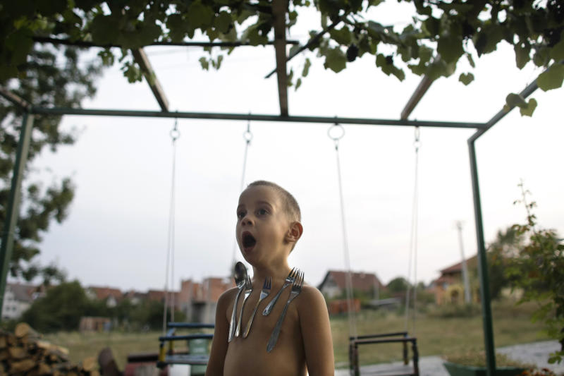 In this photo taken on Wednesday, Sept. 14, 2011,  David Petrovic, 4, stands in his garden as silverware sticks on his chest in Gornji Milanovac, some 100 kilometers (60 miles) south of Belgrade, Serbia. Serb cousins David and Luka are poles apart from other kids, for when it comes to metalwear, everything sticks. The two boys from the central Serbian town of Gornji Milanovac have a rare ability to attract metal objects, acting much like human magnets. (AP Photo/ Marko Drobnjakovic)