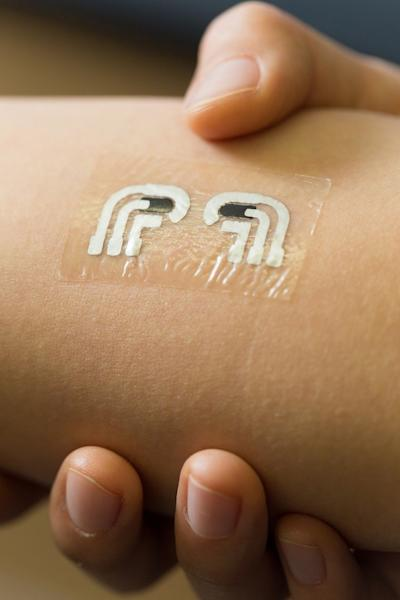 Nanoengineers at the University of California, San Diego, have tested a temporary tattoo that both extracts and measures the level of glucose in the fluid in between skin cells.