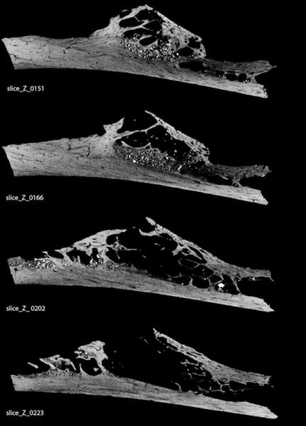 A MicroCT scan of a 120,000-year-old Neanderthal rib reveals eaten-away bone, evidence of a soft-tissue tumor.