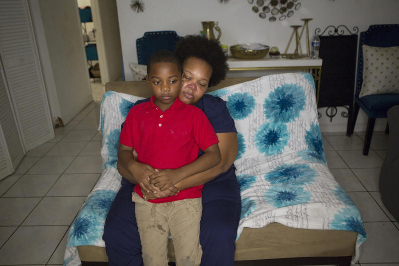 In this Nov. 4, 2019 photo, Kina Phillips holds her 5-year-old grandson Jamal Tillman, at their home in South Bay, Fla. Phillips says Florida's annual sugar cane burning season is difficult for Tillman, whose immune system suffers and asthma worsens during burns. (AP Photo/Ellis Rua)
