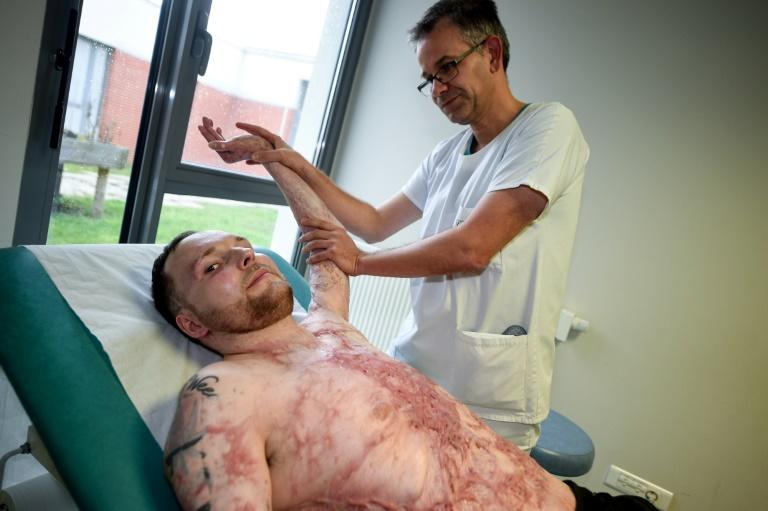 Franck Dufourmantelle received life-saving grafts from his brother Eric's skull, back and thighs