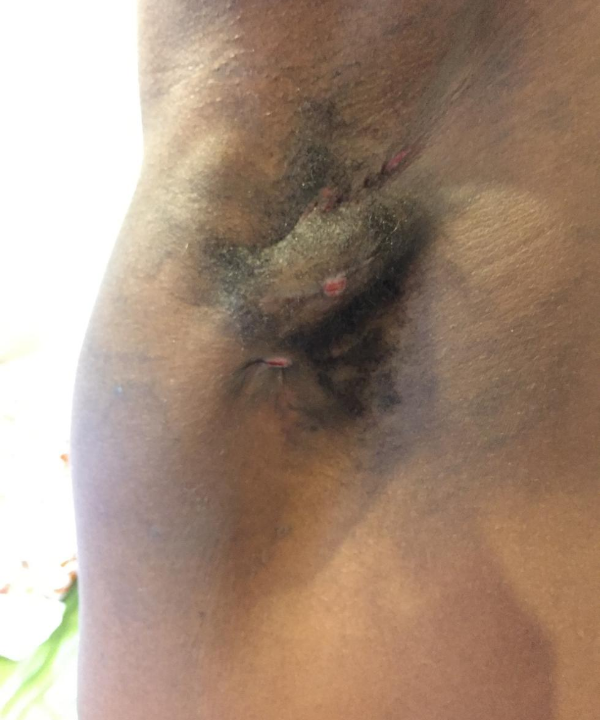Boils in armpit of boxer Jonathan Kumuteo caused by the condition hidradenitis suppurativa